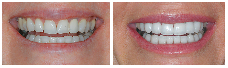 Cosmetic Dentistry | Perfect Smile | Pro-Art Dental Laboratory